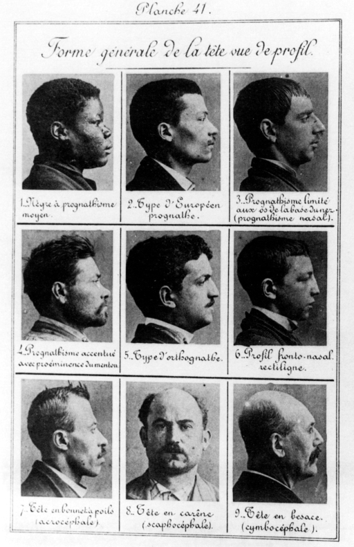 Bertillon_-_Criminal_profiles